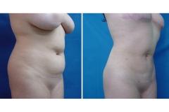 Liposucción o Lipoescultura Femenina