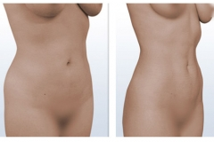 Liposucción Láser Femenina
